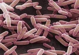 lactobacillus-sporogenes